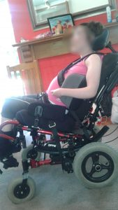 Seating Adjusted Vicair wheelchair cushion Clinical Case